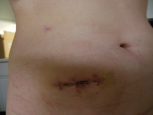 ostomy staples